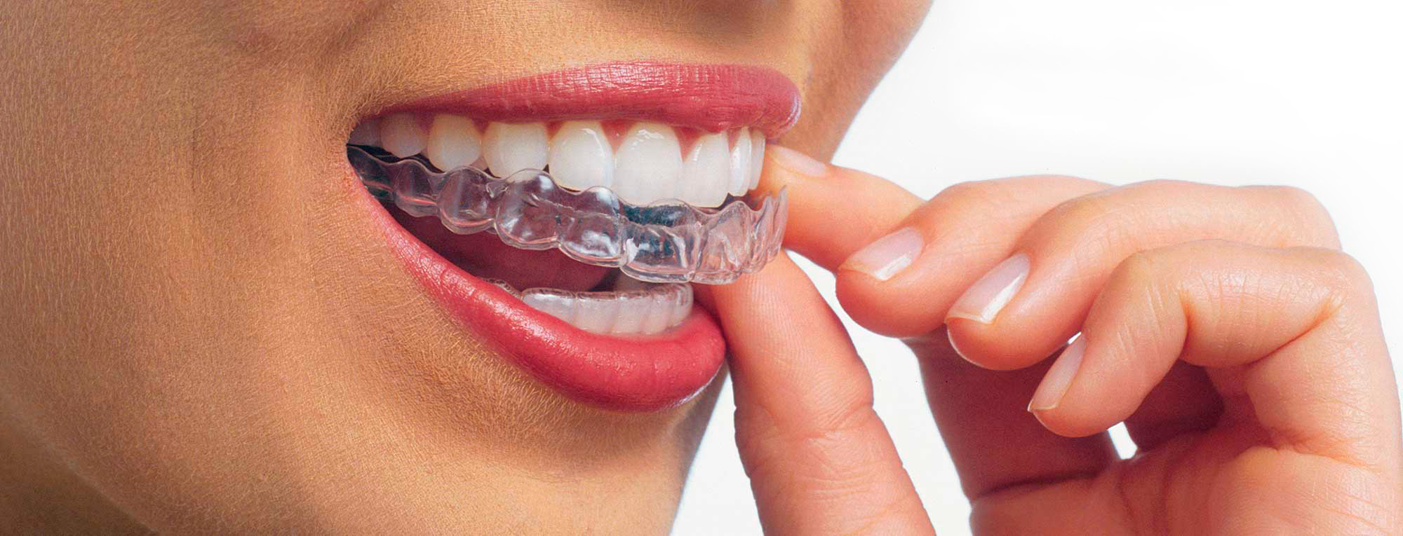 Ortodontia 1
