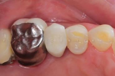Isolamento Absoluto e Preparos Dentários com o Prof. Victor Guerrero 6