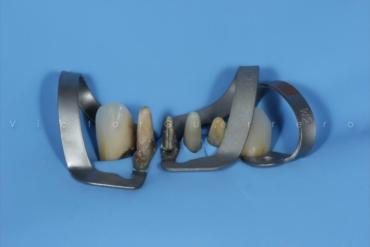 Isolamento Absoluto e Preparos Dentários com o Prof. Victor Guerrero 8