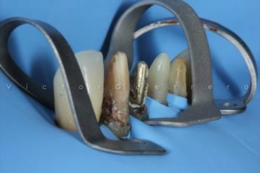 Isolamento Absoluto e Preparos Dentários com o Prof. Victor Guerrero 9