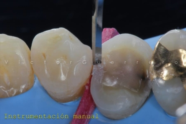 Isolamento Absoluto e Preparos Dentários com o Prof. Victor Guerrero 10