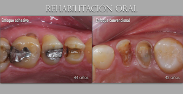 Isolamento Absoluto e Preparos Dentários com o Prof. Victor Guerrero 12