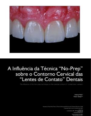 """A Influência da Técnica """"No-Prep"""" sobre o Contorno Cervical das """"Lentes de Contato"""" Dentais 1"""